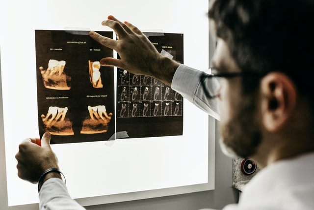 dentist looking at x rays of someone's teeth